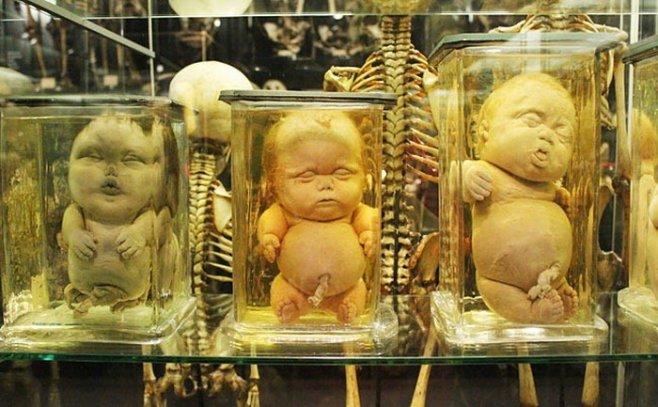 Музей человеческого тела секс